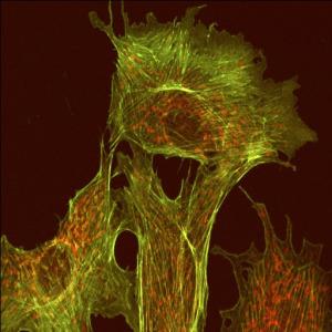 Microtubules (green) © Tina Carvalho